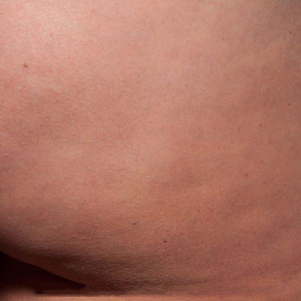 cellulite fibreuse fesses apres cellfina