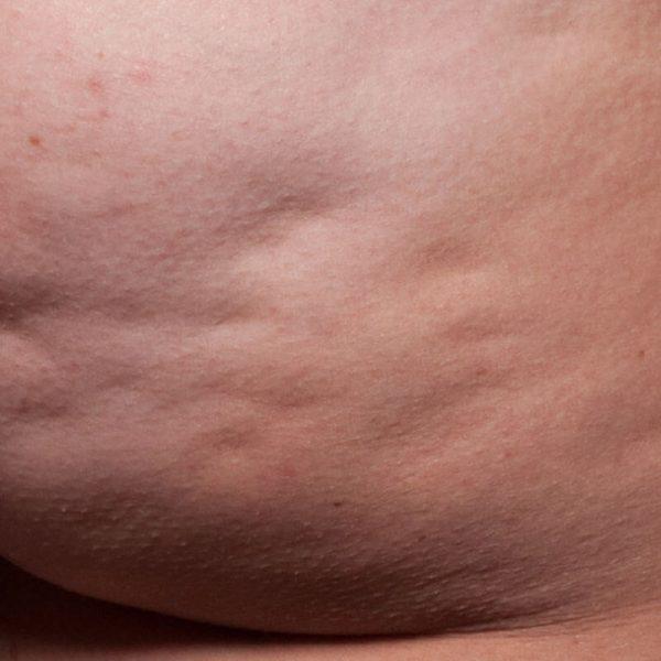 cellulite fibreuse fesses avant cellfina