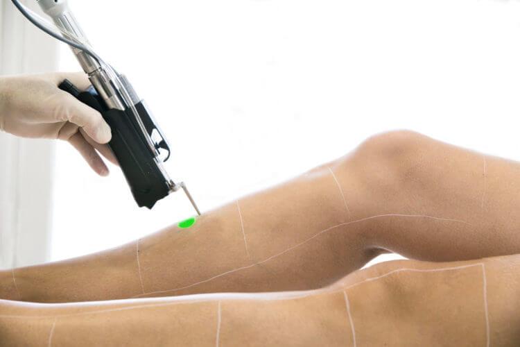 seance epilation laser des jambes