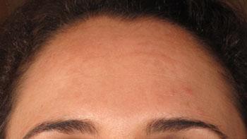 melasma du front apres peeling visage