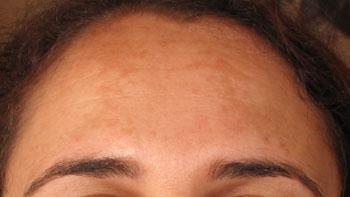 melasma front avant peeling visage