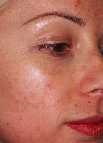 acne avant peeling