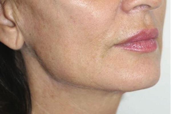 ovale du visage apres injections