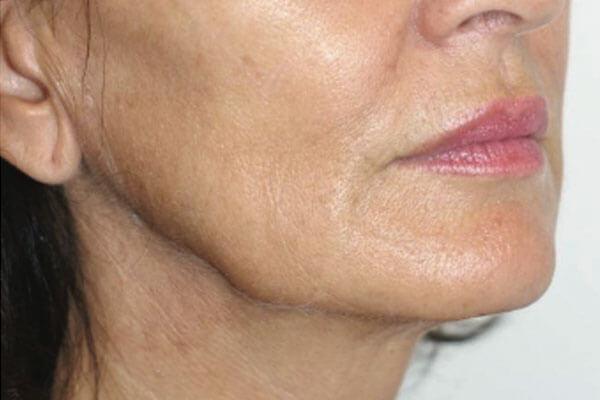 ovale du visage avant injections