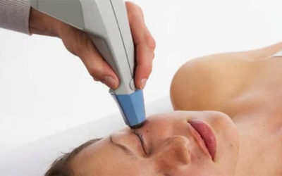 Raffermir la peau grâce à la radiofréquence
