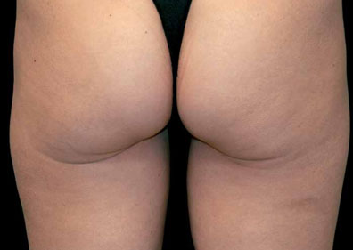 cellulite apres radiofrequence