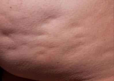 cellulite avant cellfina