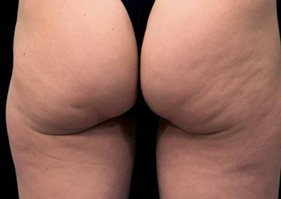 cellulite avant radiofrequence