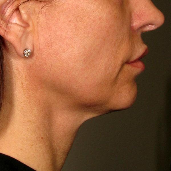 double menton apres traitement ulthera
