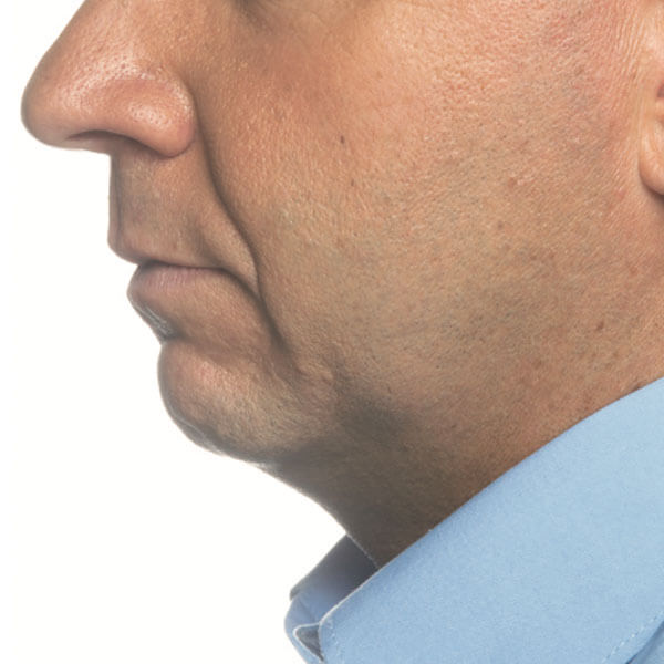 double menton avant injections
