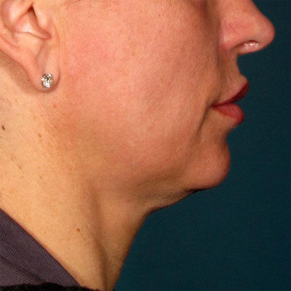 double menton avant traitement ulthera