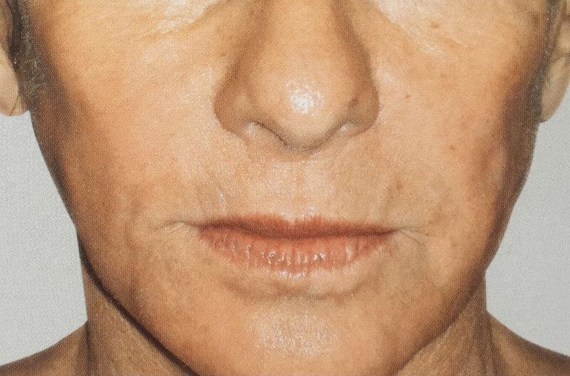 resultats injection acide hyaluronique dans joues creuses