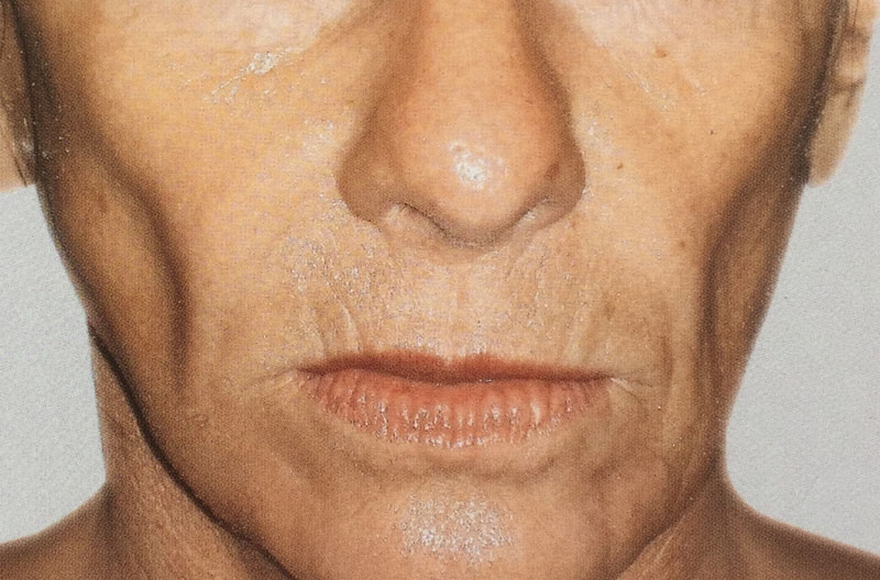 joues creuses avant acide hyaluronique