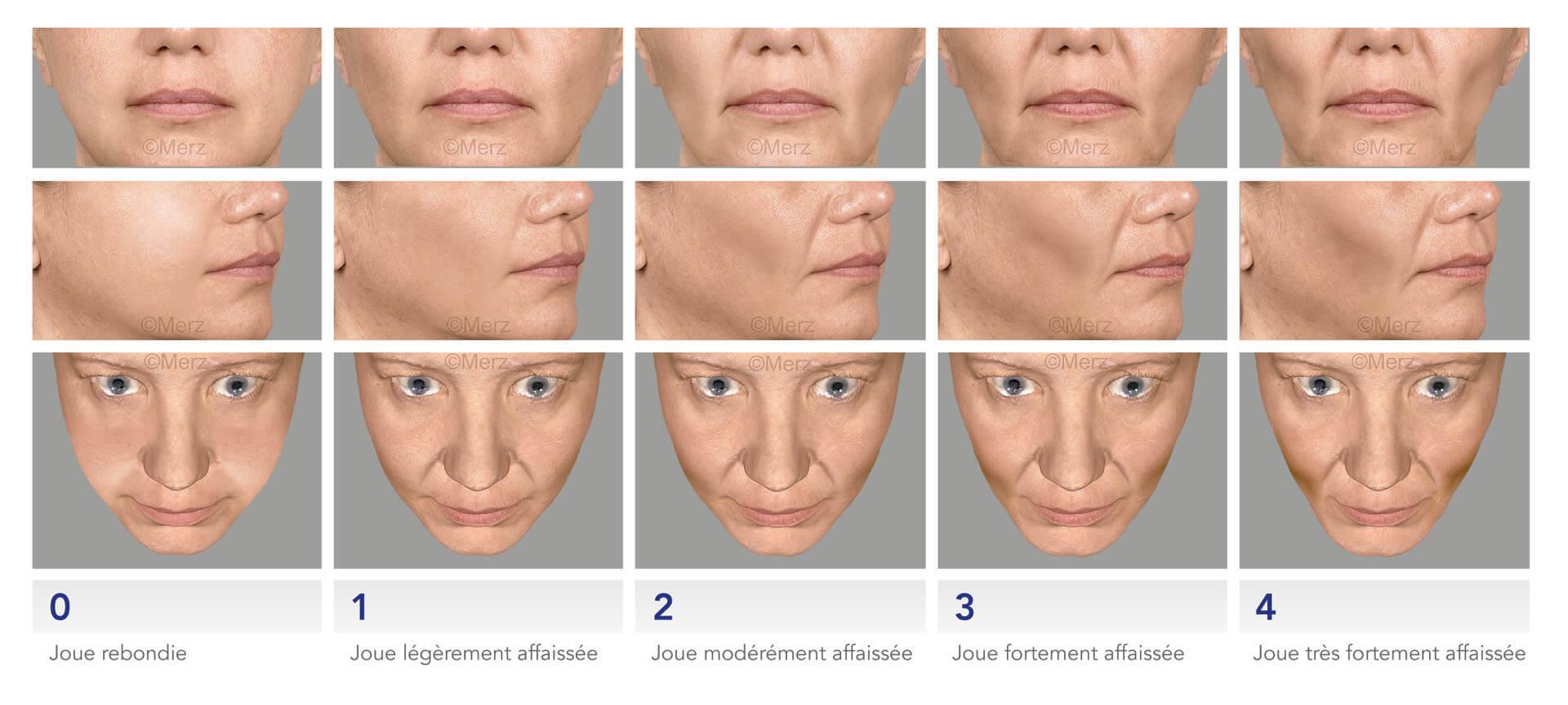 echelle creusement des joues