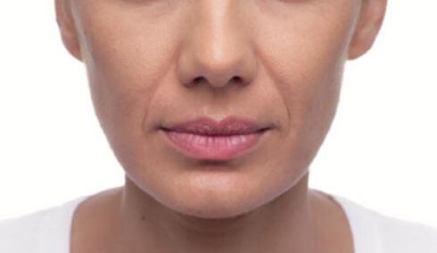 sillons nasogeniens femmes avant injections