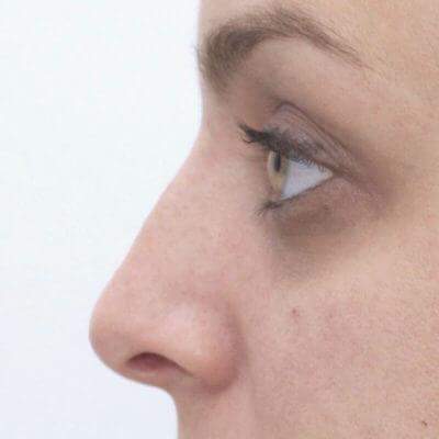resultats rhinoplastie medicale