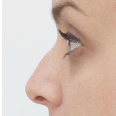 avant injection acide hyaluronique creux du nez