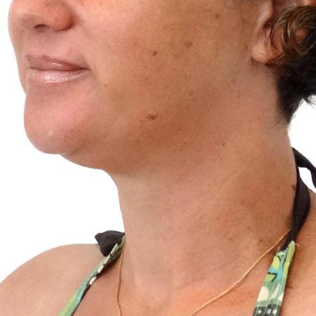 traitement du double menton cryolipolyse