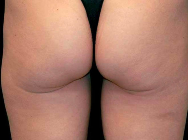 resultats cellulite apres radiofrequence