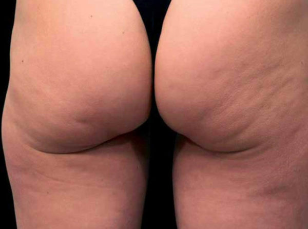 cellulite fesses et cuisses avant radiofrequence