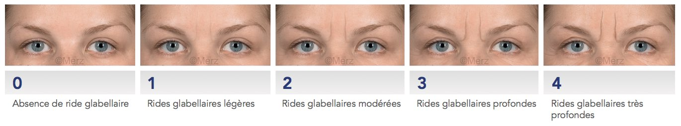 glabelle rides
