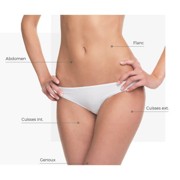 zones traitables abdomen radiofrequence