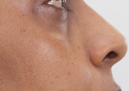 cernes pigmentes apres injection