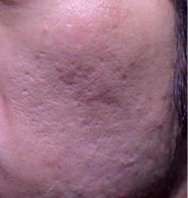 cicatrice d'acné apres laser